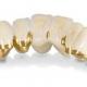 Мост на зубы – особенности