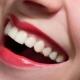 Эффективные способы отбеливания зубов