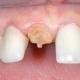Установка штифтового зуба