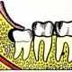 Ретинированный зуб – технологии лечения