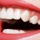 Как ухаживать за зубами после художественной реставрации?