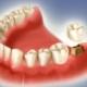 Можно ли восстановить зуб, если сохранился только корень?