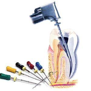 инструменты для лечения каналов