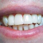 Зубы с виниром
