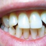 Зубы без виниров