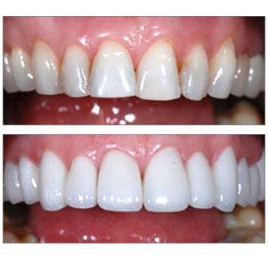 Показать зубные виниры