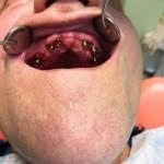 фото рта пациента до имплантации зубов