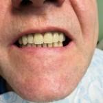 фото рта после имплантации зубов на челюсть