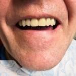 фото после установки зубных имплантов все на 4