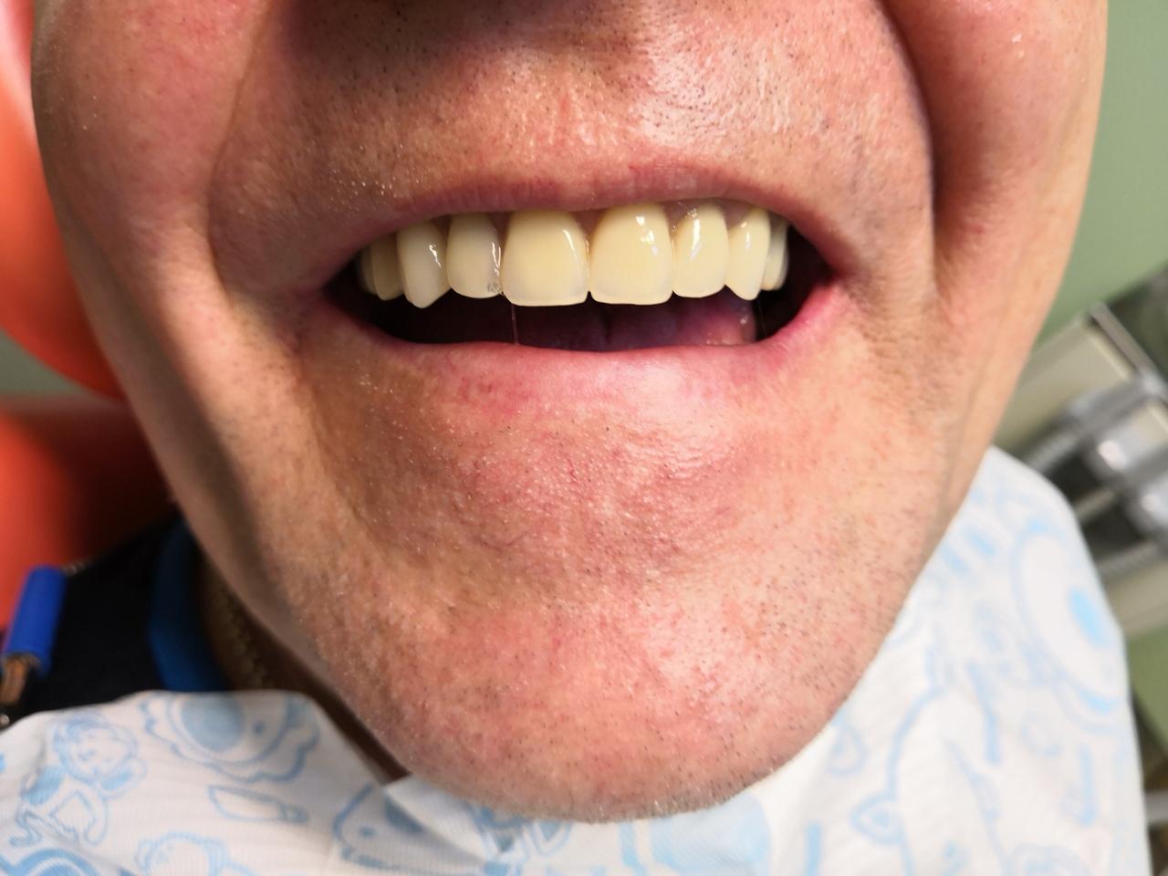 виниры протезы для зубов купить в москве