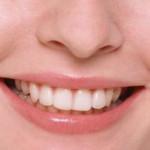 Скидка на чистку зубов