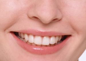 Акция на чистку зубов