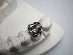 Металлические коронки лучше ставить на  задние зубы