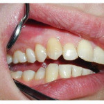 киста зуба, лечение