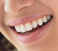 холодное отбеливание зубов beyond отзывы
