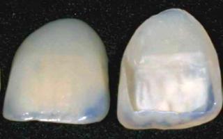 обточка зубов под виниры видео