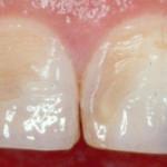 Разрушение эмали зуба