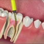 чистка канала зуба