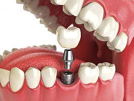 Имплантация зубов восстанавливает зубной ряд.