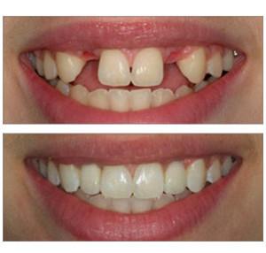 после имплантации зубов просто отличить протезы от настоящих зубов невозможно.