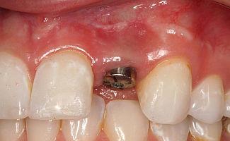 В зубной имплант можно вставить зубную коронку любого вида.